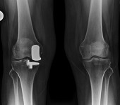 Biomet Oxford Knee - Front Xray